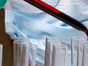 cholesterol krev zkumavky vyzkum